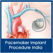 dp-images-pacemaker-implant-procedure-india-surgery-india