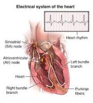 Pacemaker Implantation-1
