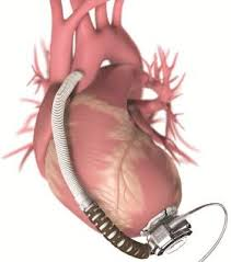 Ventricular Assist Device Surgery