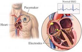 Pacemaker Implantation surgery-3