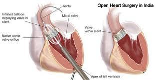 Open Heart Surgery-1