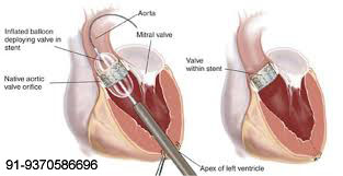 open-heart-surgery-12-copy