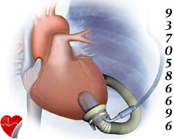 off-pump-heart-surgery-11