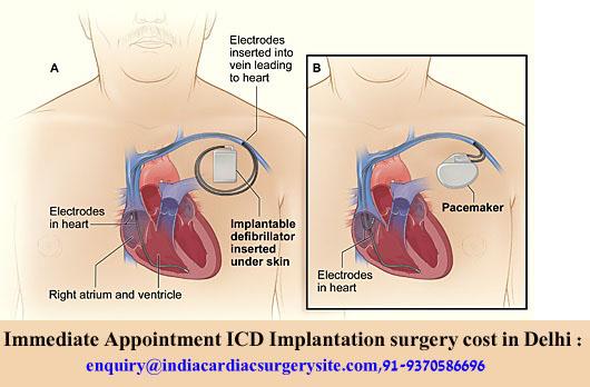 Implantable-Cardioverter-Defibrillator copy