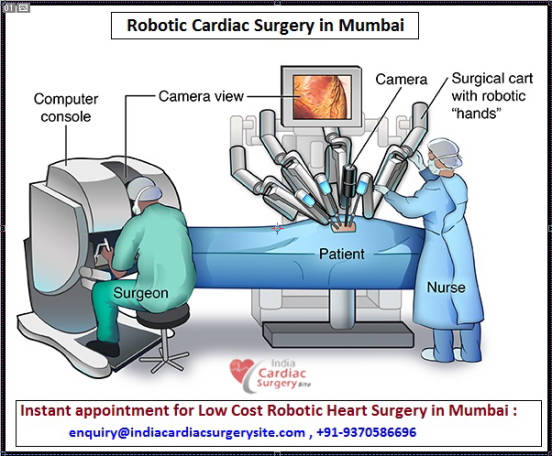 Robotic Cardiac Surgery in Mumbai