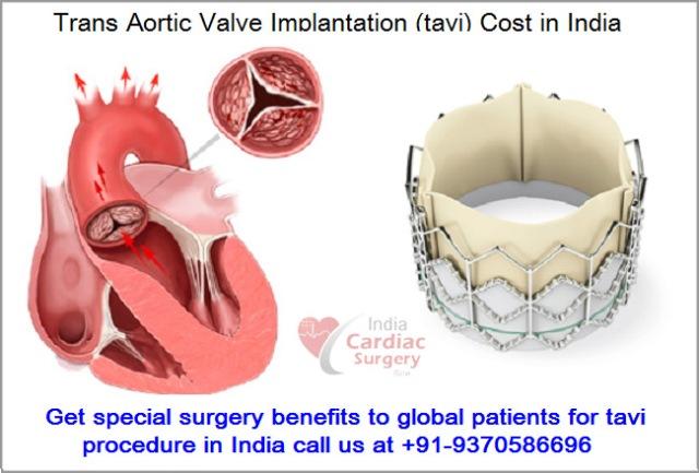 Cardiac surgery procedures pdf to word