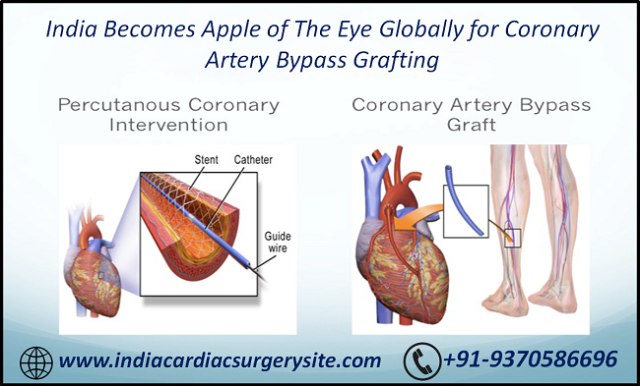 India Becomes Apple of The Eye Globally for Coronary Artery Bypass Grafting.png